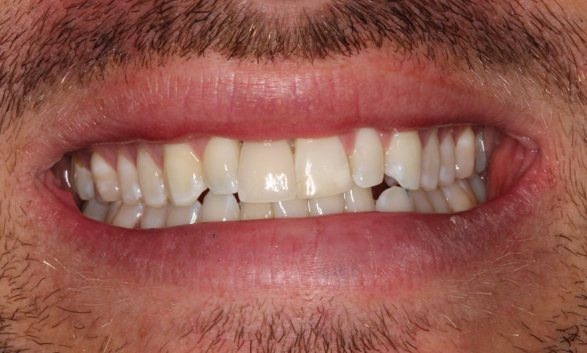 single implant crown after
